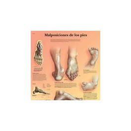 Lámina Malposiciones de los Pies (3B) (50x67 cm)